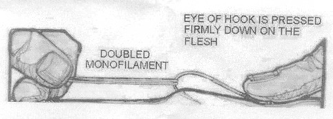 Fish hook removal for Fishing hook accidents